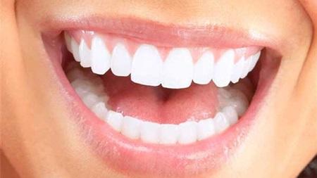 笑顔で口臭を予防できる